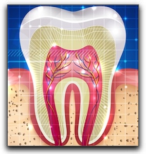 Root Canals in Custer