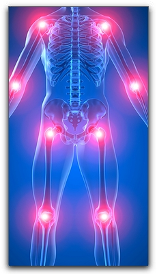 Arthritis Pain Relief At Johnson Chiropractic Marketing