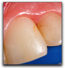 Brush Up On Your Cavity Basics Baltimore