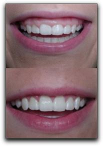 Cosmetic Dental Smile Transformations In Elizabethtown