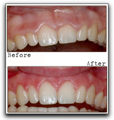 Not Happy With Your Gums? Ask About Contouring In Lone Tree