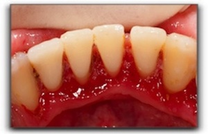 Gum Disease in Murray