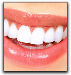 Whitening vs Bleaching At The Parkway Dentist In Fort Worth