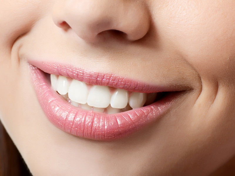 cosmetic dental Crowns in La Mesa