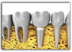 Montgomery tooth implants