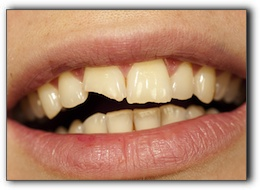 porcelain veneers cost EagleChipped Tooth? No Need To Panic With Excellence In Dentistry River