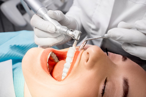 professional dental cleaning Houston