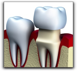 Salt Lake City dental crowns