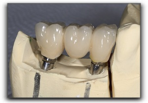 how a dental crown is made Cary