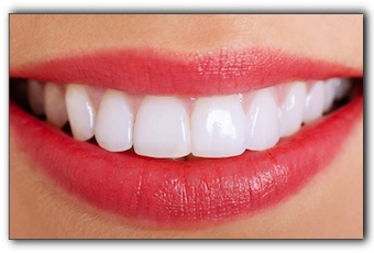 Dental veneers in Tampa