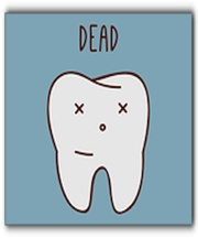 do I need a root canal Winston-Salem