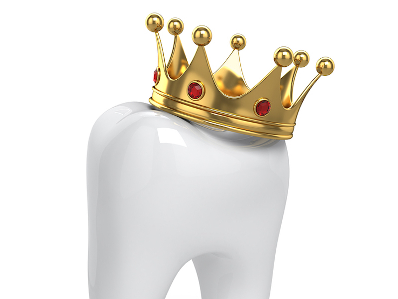 dental crowns in Huntersville