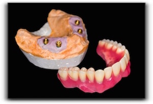 Leduc tooth implant supported dentures
