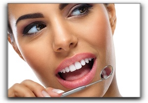 dental veneers in Trinity