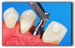 dental implant in Friendswood