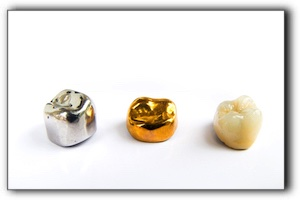 repair broken dental crown San Diego