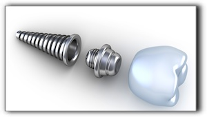 Linn dental implants cost