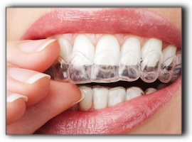 Professional Tooth Whitening in East Lake