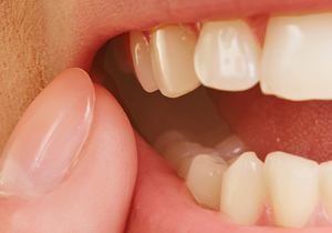 inflamed gums Cornwall