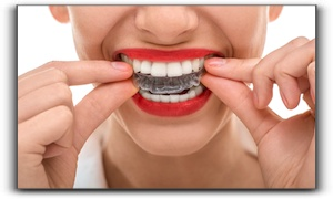 damon braces and invisalign Las Vegas