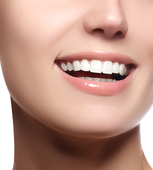 porcelain veneers Monkton