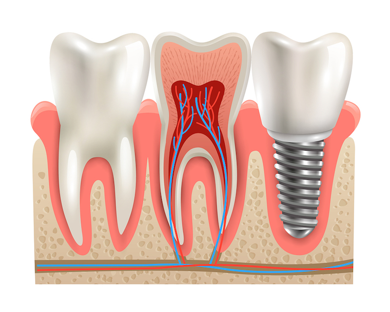 dental implants Shrewsbury