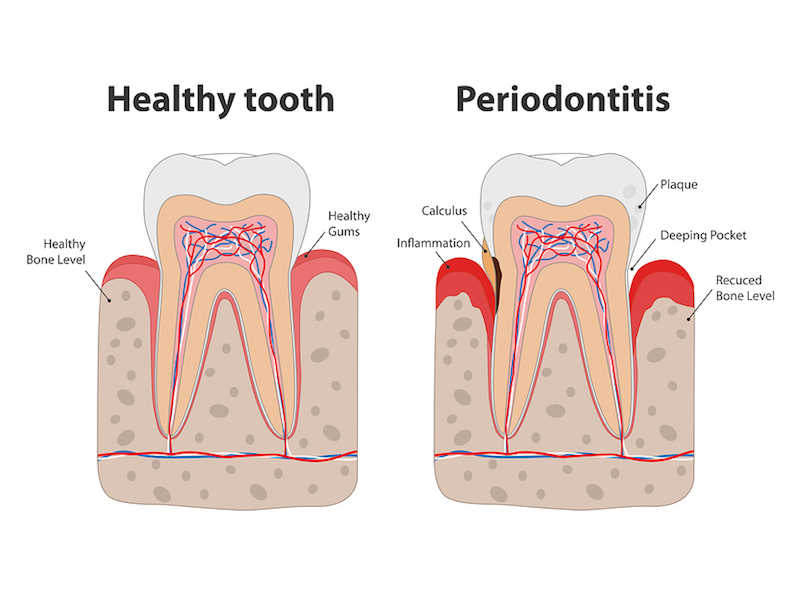treatment for bleeding gums Stafford Township