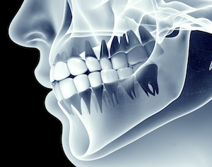 Sinus Pain Or Abscessed Tooth? - Rotem Dental Care