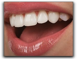 Cosmetic Dental Procedures To Improve Your Smile In San Diego