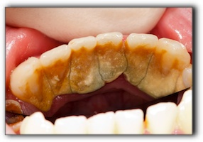 Benbrook dental implants