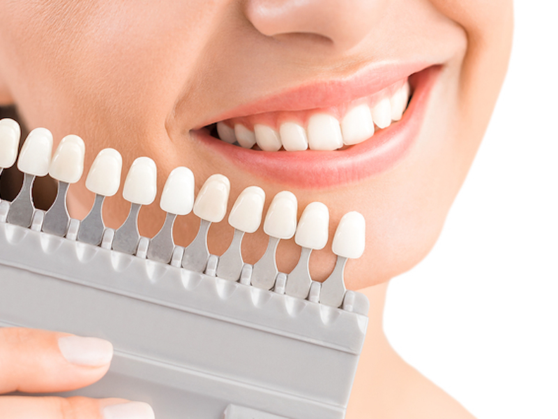 Osseo cosmetic smile makeover
