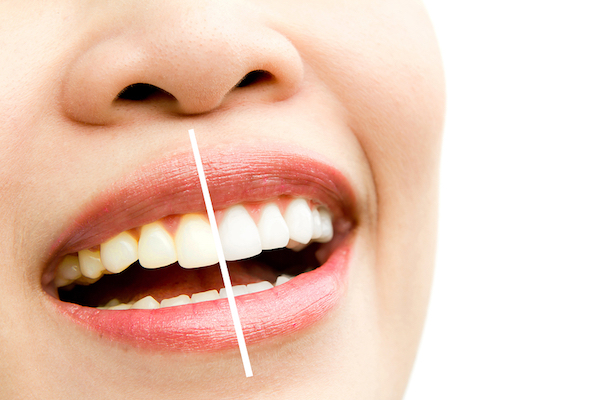 Teeth Whitening in Morrisville
