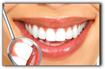 Teeth Whitening in Lone Tree