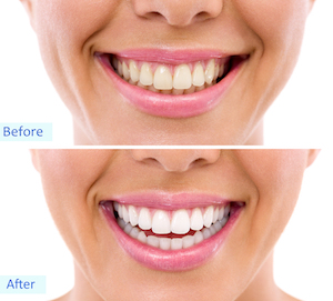 teeth whitening Monkton