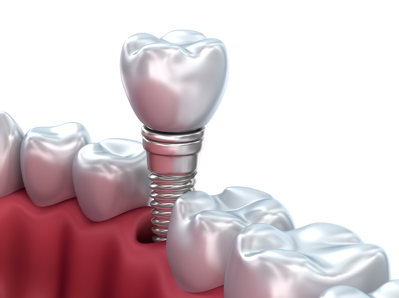 Salt Lake City Permanent Tooth Replacement