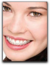 Want Clear Braces In Fishers?