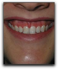 Laser Dentistry Can Fix A Gummy Lone Tree Smile