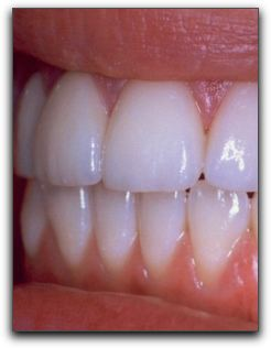 Seattle Porcelain Veneers and Instant Orthodontics