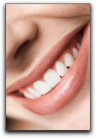How Can You Improve Your Smile Quickly?