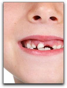 Oral Rinses For Healthy Children's Teeth In Sandy