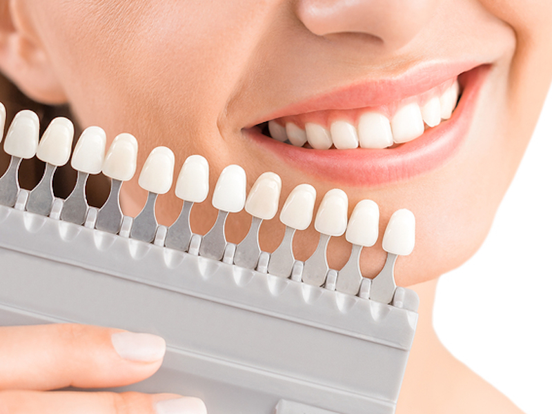 Anchorage Teeth Bleaching