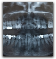 Las Vegas Dental News: What To Expect After Wisdom Teeth Extraction