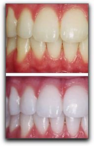 Dazzling White Teeth in Los Angeles