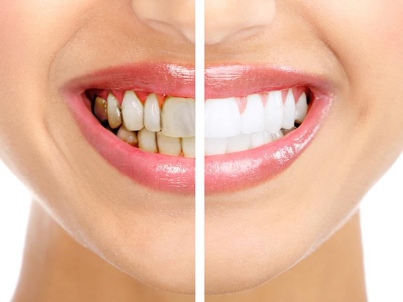 fast teeth whitening Dallas