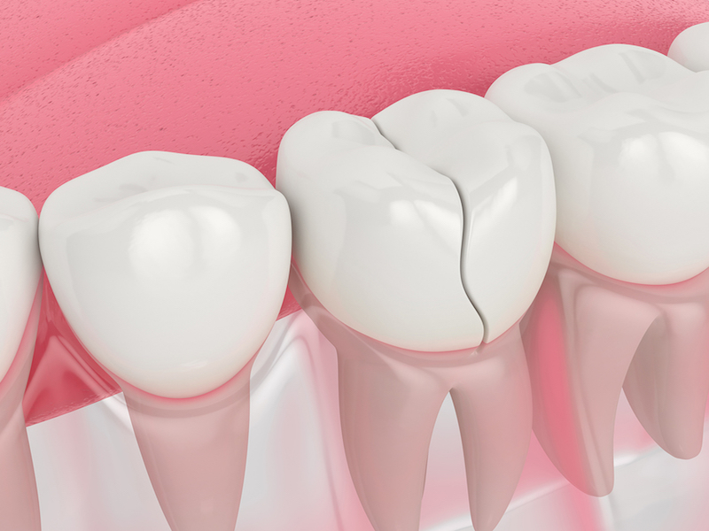 cracked tooth repair Gibsonton