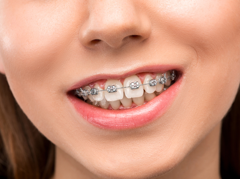 braces for overbite Burlingame