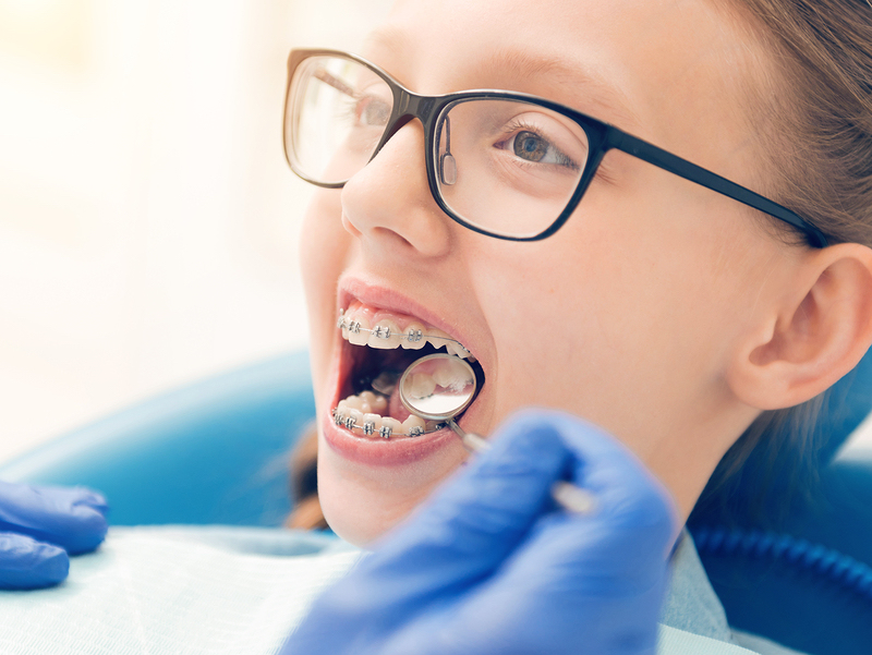 Braces help fix an overbite in California