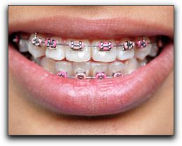Want Clear Braces in San Antonio?