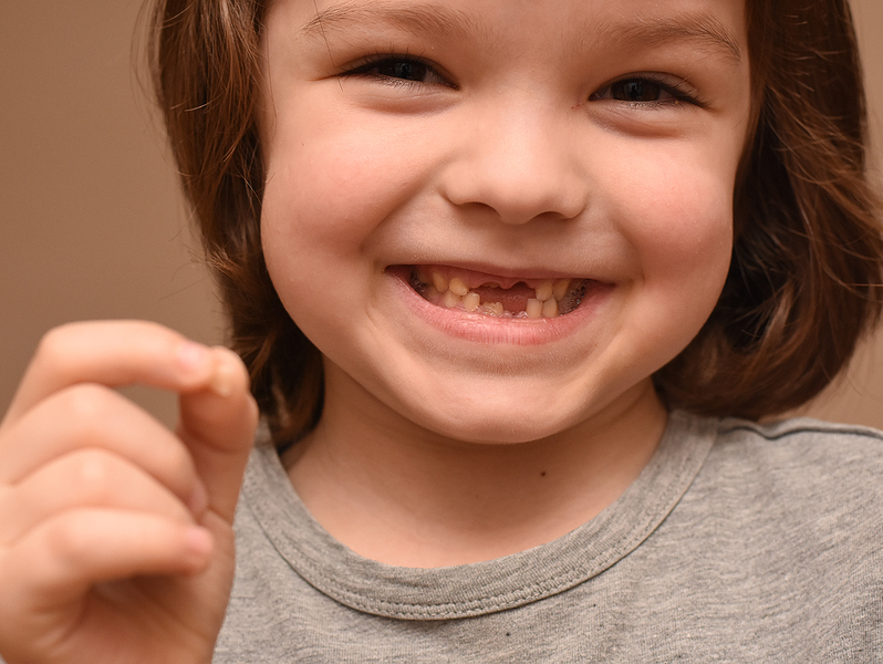 kids dental spacers Burlingame