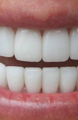 Porcelain Veneers Fort Worth